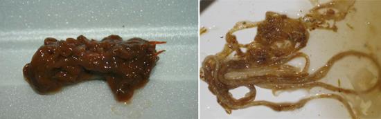 гельминты в кале