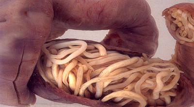 аскаридоз кишечник
