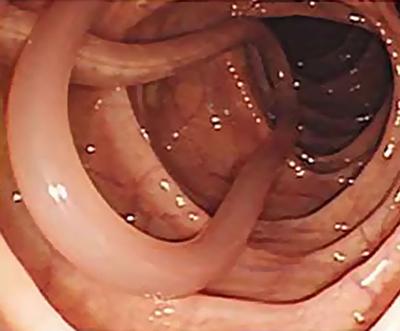 аскариды кишечник фото