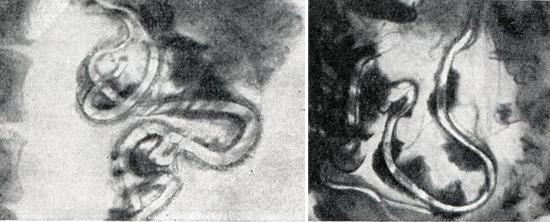 аскариды в кишечнике фото