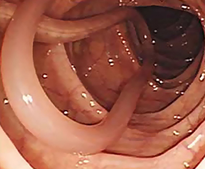диагностика аскаридоза аскариды