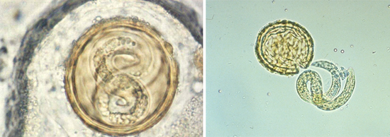 личинка аскариды яйца