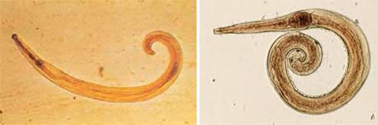 острицы микроскоп фото