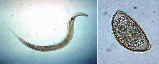 личинки остриц фото самка