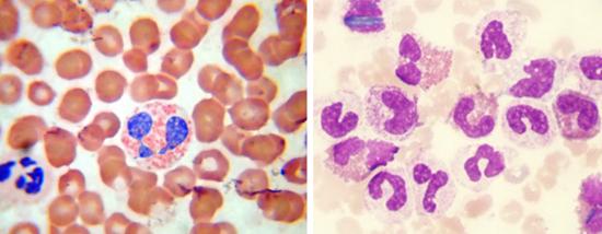 эозинофилов микроскопом фото
