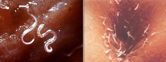 глисты острицы энтеробиоз
