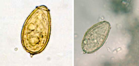 яйца описторхов фото