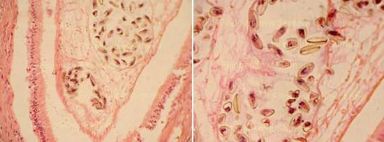 сибирская двуустка в организме фото