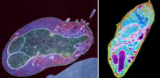 малярийный плазмодий фото возбудитель малярии