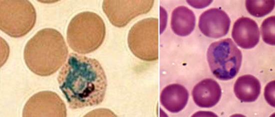 Plasmodium vivax малярия