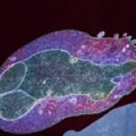 Малярийный плазмодий и его жизненный цикл