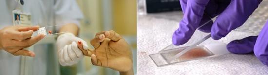 анализ крови малярия
