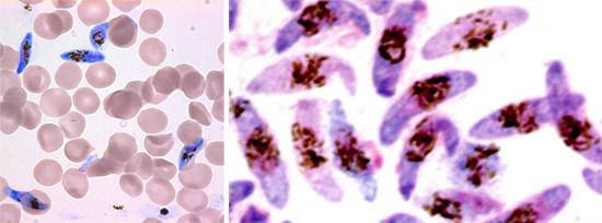 малярия кровь