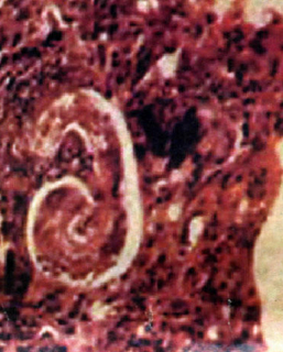 личинка токсокары фото легкие
