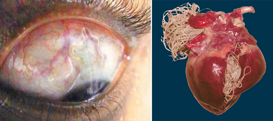 аскариды глаз сердце