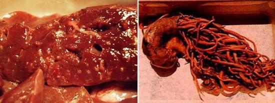 аскариды в печени фото кишечнике