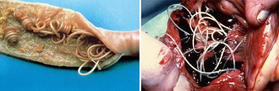 аскариды фото кишечник организм