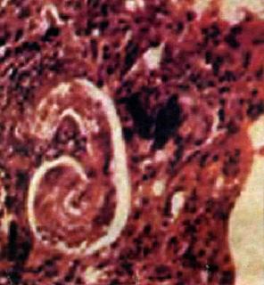 токсокары личинка фото