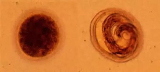 яйцо токсокары фото
