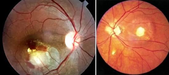 токсокара глаз симптомы фото