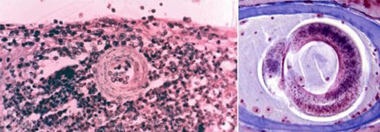 эозинофильная гранулема фото личинка