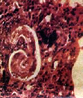 фото личинка токсокара