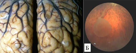 фото цистицерки в мозге в глазу