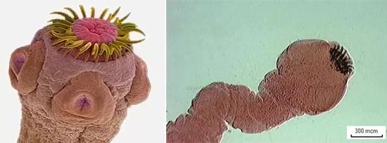 органы свиного цепня