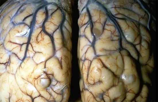 свиной цепень мозг
