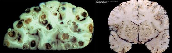 фото цистицеркоз головного мозга