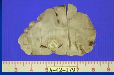 фото цистицерк в мозге