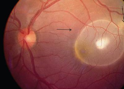 фото цистицеркоз глаз ленточные черви у человека симптомы