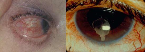 цистицеркоз глаза фото