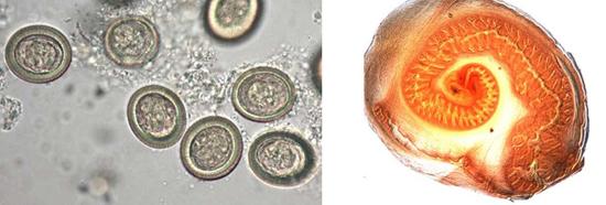 фото цистицерк финна яйца ленточных глистов