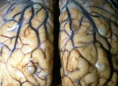 цистицерки мозг ленточные черви у человека симптомы