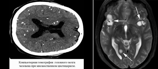 цистицеркоз головного мозга
