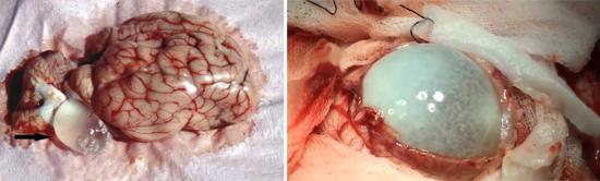 эхинококкоз головной мозг
