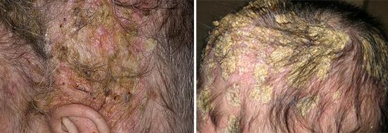себорейный дерматит тяжелая форма