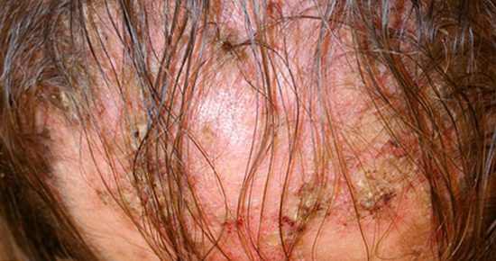 себорейный дерматит алопеция