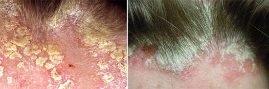 себорейный дерматит у взрослых