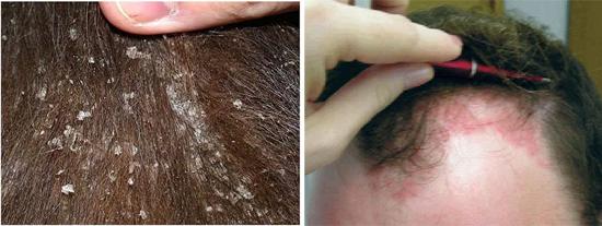 перхоть себорейный дерматит фото волосистой части головы