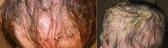 волосы выпадение себорея
