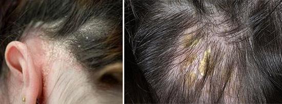 фото сухая жирная себорея кожи головы