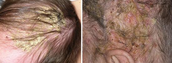 фото жирная себорея кожи головы