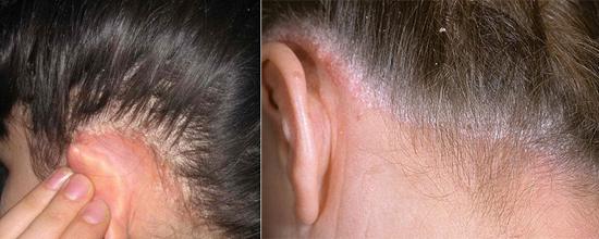 фото сухая себорея кожи головы