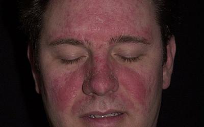 фото себорейный дерматит на лице