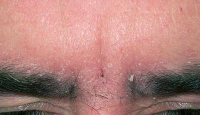 себорейный дерматит бровей