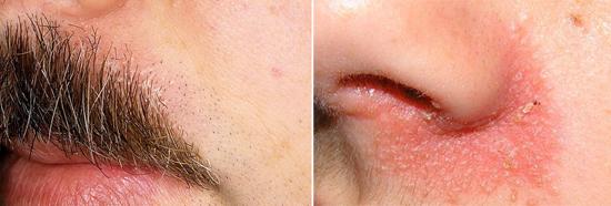 фото себорея на лице