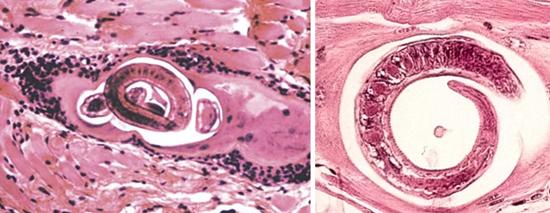 трихинелла в мясе под микроскопом