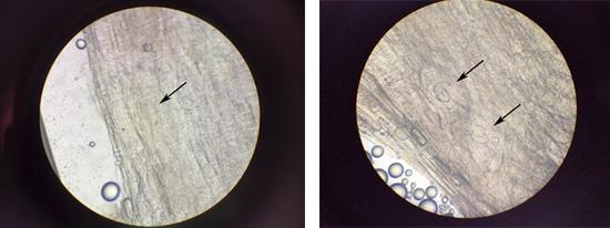 трихинеллы в мышцах фото